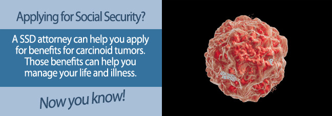 Applying for Benefits for Carcinoid Tumors
