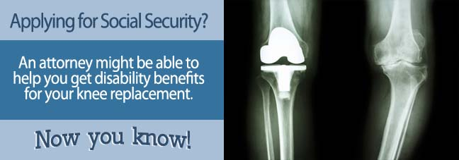 How To Apply for Benefits for a Knee Replacement